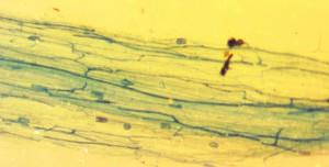 Elm-mycorrhiza-1