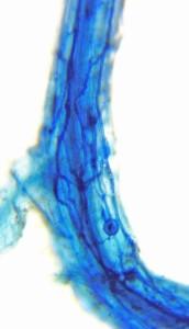 Elm-mycorrhiza-3
