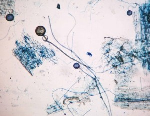 Glomus spores and root fragments