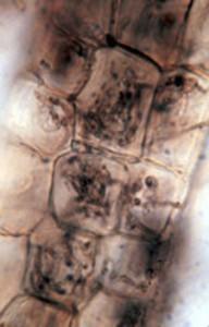 Ericoid mycorrhiza in Vaccinium deliciosum